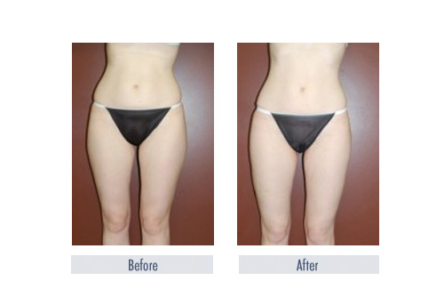 how much does a tummy tuck cost in toronto